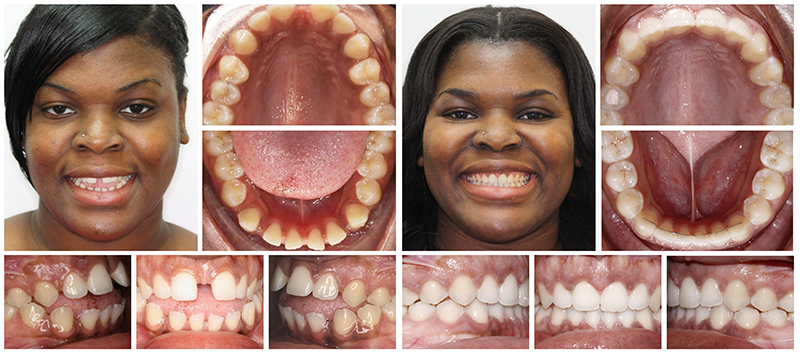 Woman Invisalign Example