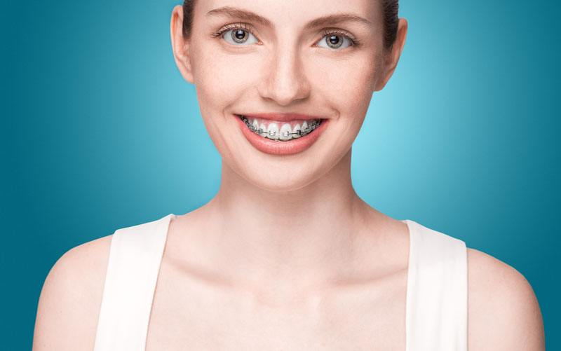 Metal/Traditional Braces Example 1