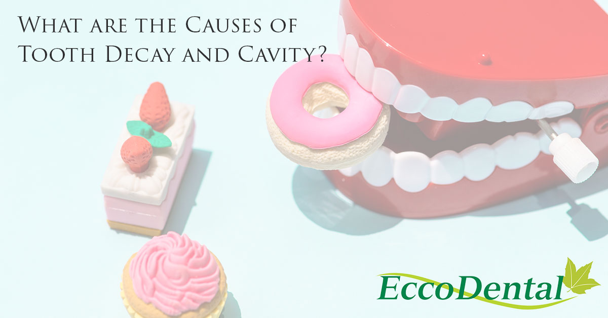 Causes of tooth decay and cavity