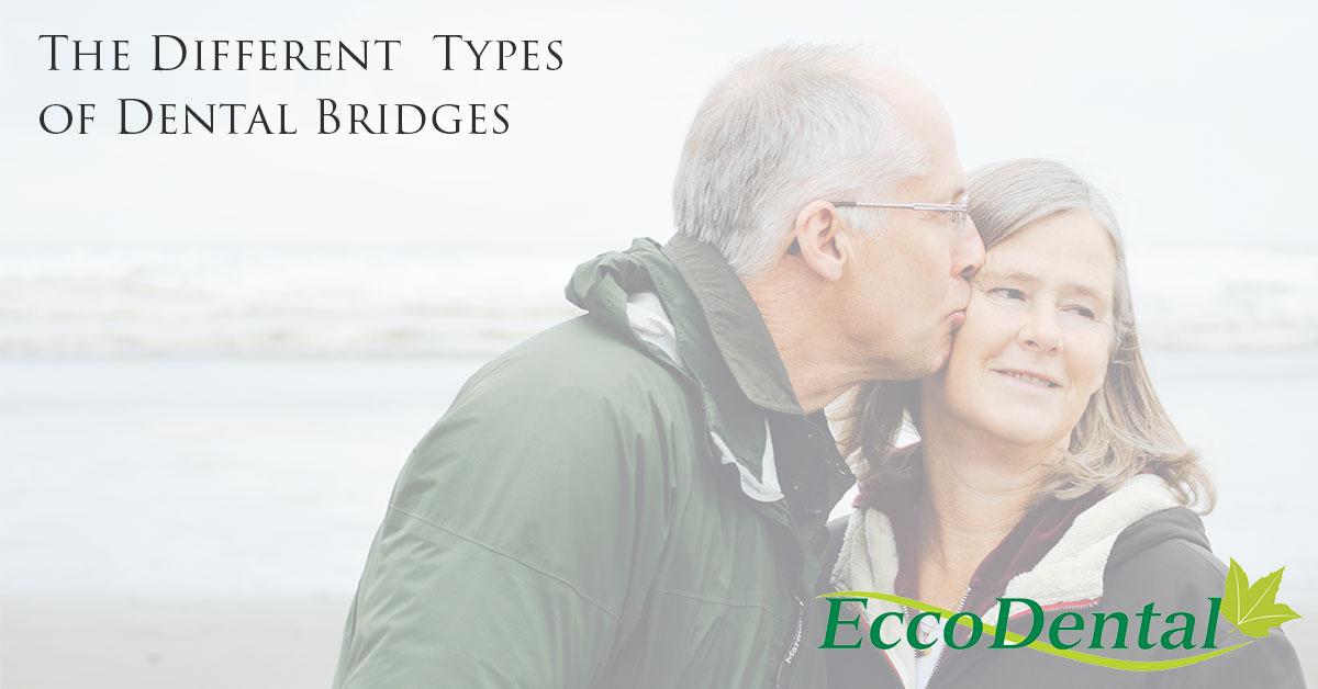 The different types of dental bridges